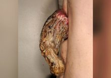 Doctors remove 5-inch cancerous 'dragon horn' from man's back